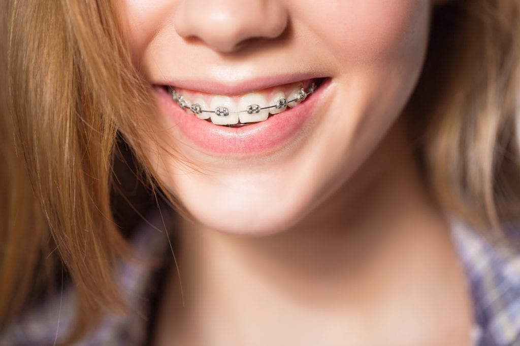 mädchen mit festsitzender zahnspange praxis tepper