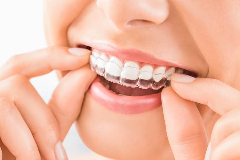 unsichtbare Zahnschiene Dr. Tepper